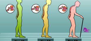 Kemik Erimesinin Önüne Geçmek İçin Evde Yapmanız Gereken 7 Şey