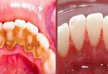 Sadece Üç Malzemeyle Dişlerinizdeki İnatçı Plaklardan Kurtulun