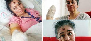 Doktorları bile şoke etti! Güneşe çıktıkça eriyor… Yüzünü, kulağını ve elini kaybetti…