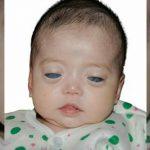 Görme Yetisi Olmadan Dünyaya Gelen Çocuğu Kimse İstemedi – Kadın Onun Yüzünü Görür GörmezBakın Nasıl Bir Karar Aldı