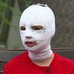 15 yaşındaki kız suratı sargılı olduğu için baloya gitmekten vazgeçti. Arkadaşlarının aklında harika bir plan vardı…
