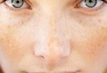 Güneş Lekelerinin Oluşma Nedenleri Ve Tedavi Yöntemleri