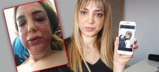 Hatay'da özel bir hastanede estetik yaptıran Feryal Mansuroğlu'nun yüzü tanınmaz hale geldi.
